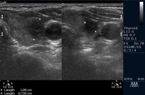 Фото УЗИ щитовидной железы