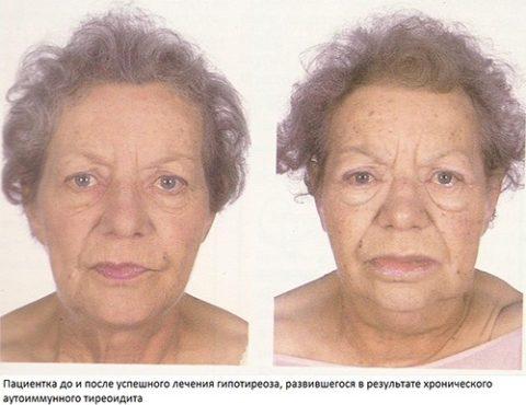 Признаки АИТ на лице (слева)