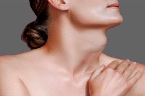 На поздних стадия тиреоидита Риделя формируется зоб из-за разрастания фиброзной ткани