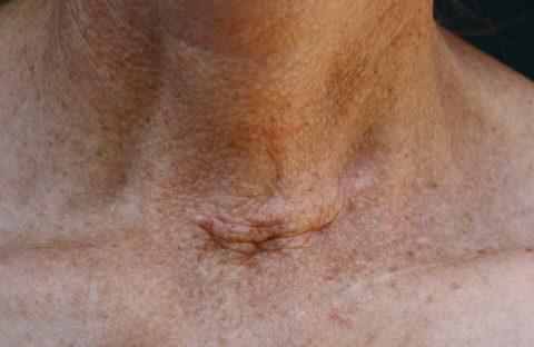 Шрам после удаления щитовидной железы