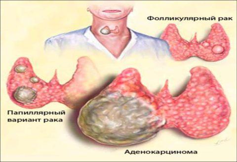 Основные методы диагностики рака щитовидной железы