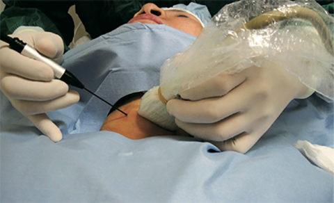 Термоабляция узлов щитовидной железы