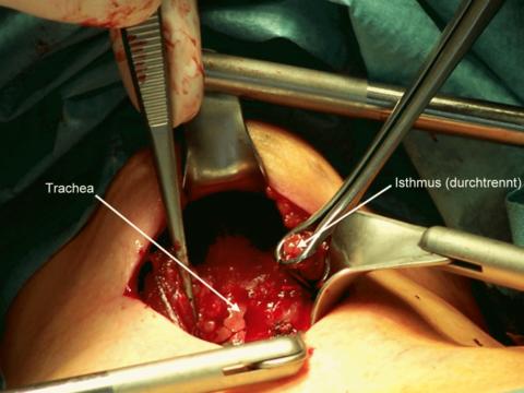 Целесообразно или нет удаление зоба щитовидной железы?