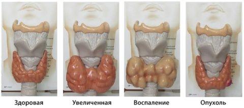 Схематические отображение аномалий щитовидки