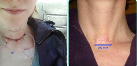 След после открытой операции на щитовидной железе