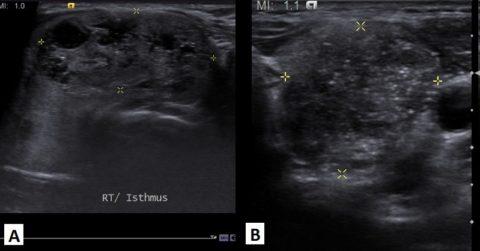 Изоэхогенный узел в щитовидной железе – насколько опасно такое новообразование