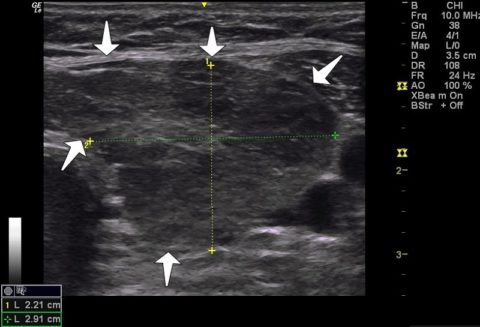 Воспаление щитовидной железы УЗИ показывает зоны гипоэхогенности, соответствующие множественным узлам