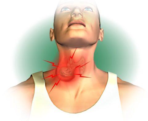 Болит щитовидная железа – насколько опасен данный симптом
