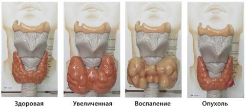 Сравнение здоровой и больной щитовидной железы