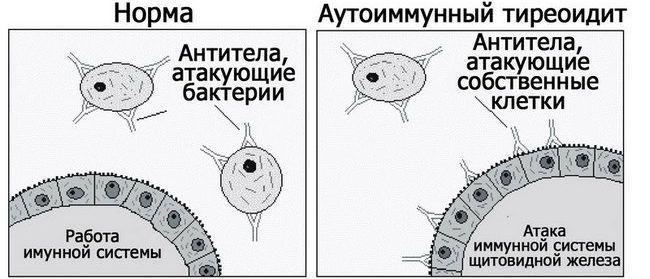 Вопрос Olga о разнице между аутоиммуным тиреоидитом в фазе гипотиреоза и гипотиреозом другого генеза